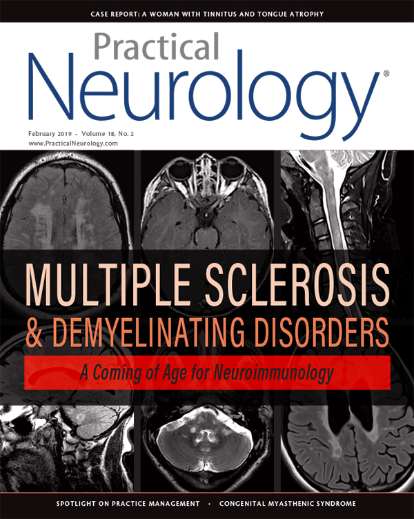 Neuromyelitis Optica Spectrum Disorders - Practical Neurology